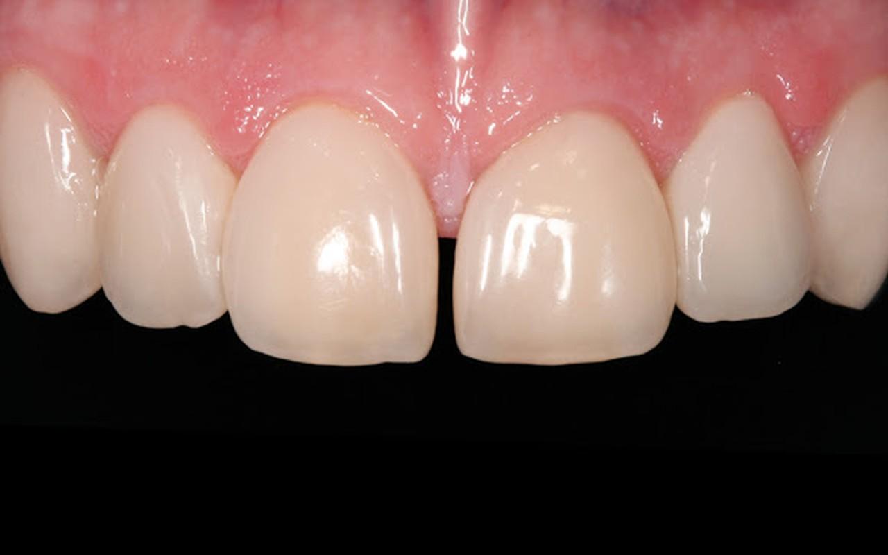 Frontzähne nach der Behandlung