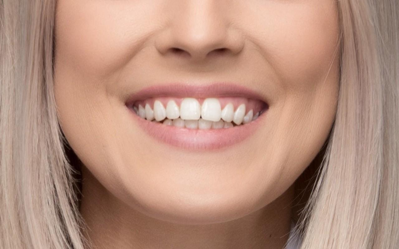 Zahnarztpraxis Filderstadt Leuchtweis: Lächeln